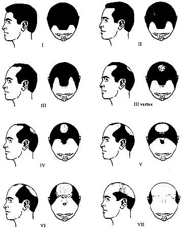 bald-diagram